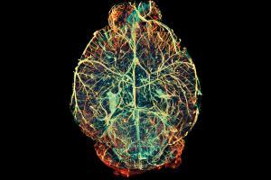 nanoreszecskek.jpg