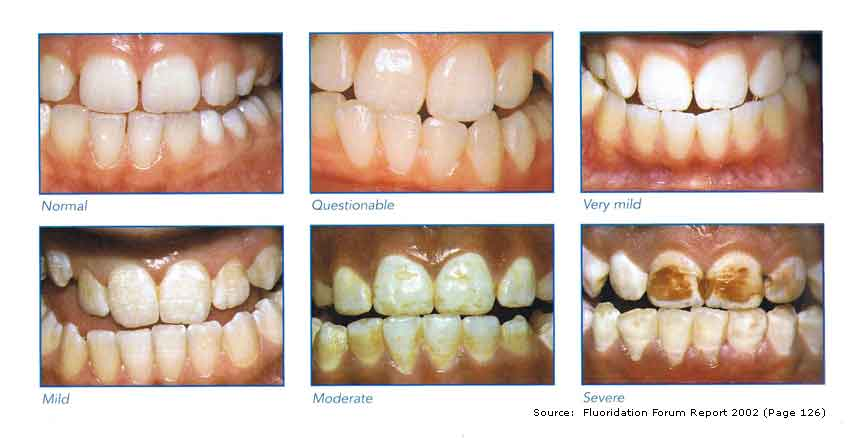 fluoride effect on teeth.jpg
