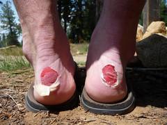 serious blisters.jpg