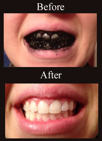 whiten your teeth with activated carbon.png