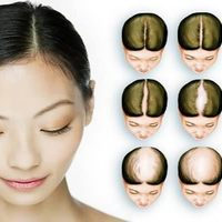 Skalpterápia - egy különleges, magyar eljárás a hajproblémák kezelésére