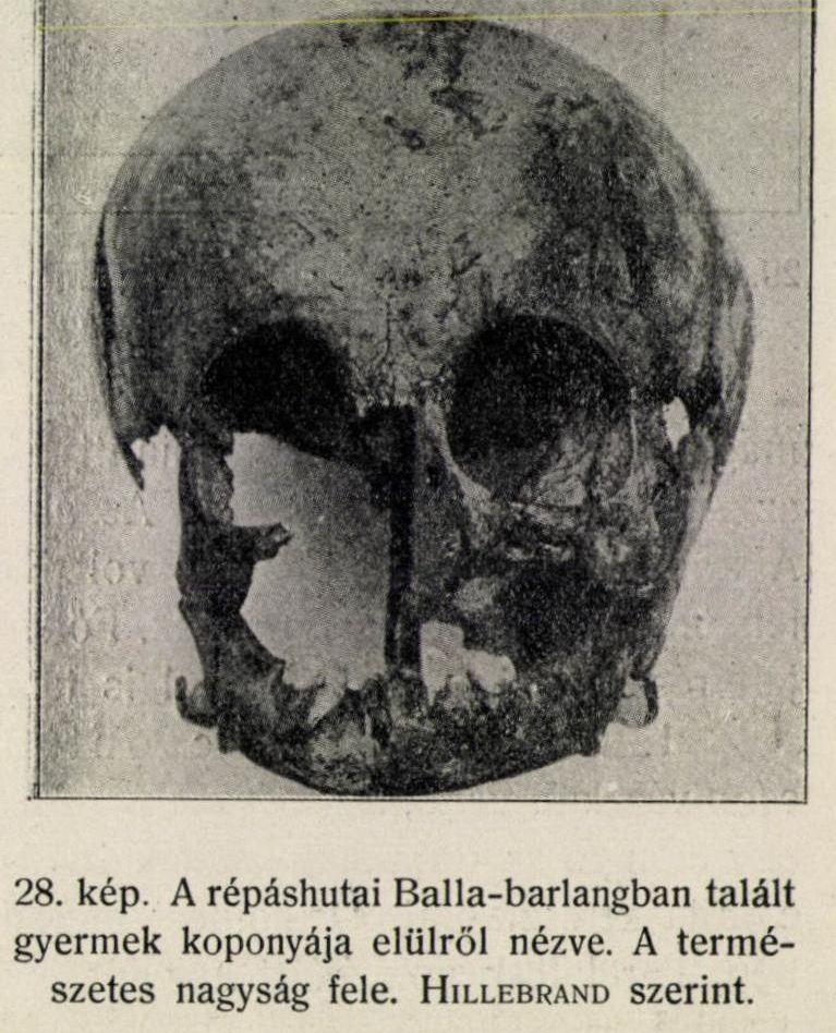 balla-gyerekkoponyatermtudkozl_1912_pages257-278-page-007.jpg