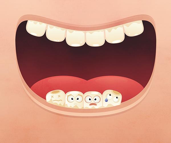 fogak-kisfelbontas.jpg