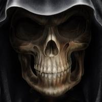 Stimuláljuk a hírös magyar szürkeállományt - Új koponyát nyomtattak a betegnek