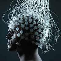 Stimuláljuk a hírös magyar szürkeállományt - Az agyszkenner megmutatja, kire gondolunk