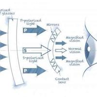Kész a távcsőként működő kontaktlencse