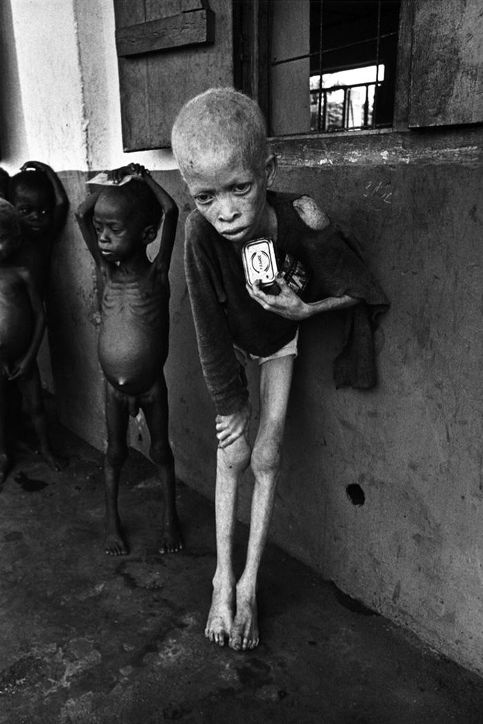 don_mccullin_biafra_albino_child.jpg