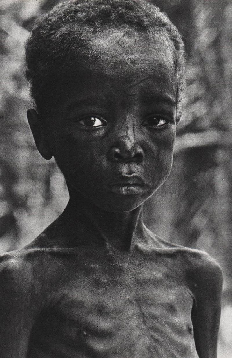 Kilencéves biafrai fiú