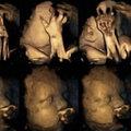 Hogyan szenvednek a dohányzó kismamák babái?
