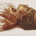 Az alvajáró gyilkos esete