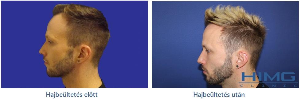 sztárok hajbeültetése