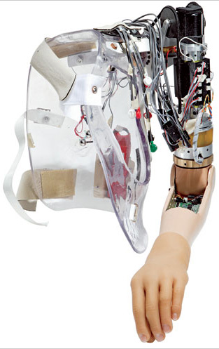 ArtificialArm.jpg