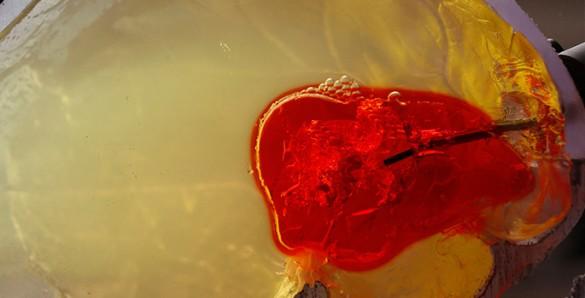 phantom_blood_clot.jpg