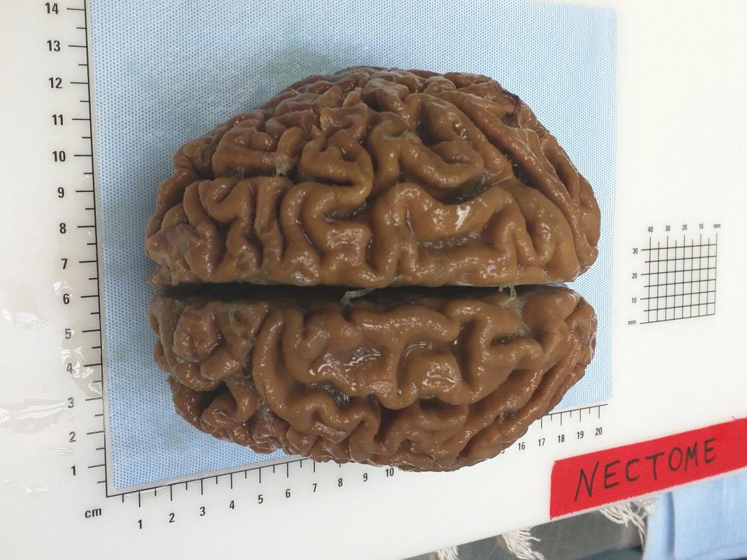 preserved-brain.jpg