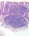 Mikroszkóp Lumia módra